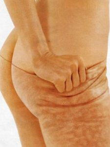 How to get rid of cellulite peel